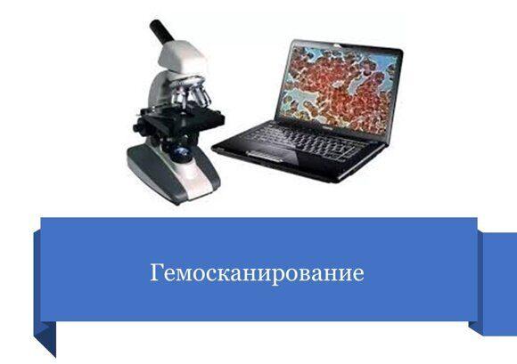 Гемосканирование